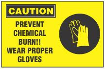 Severe Burns in the Workplace